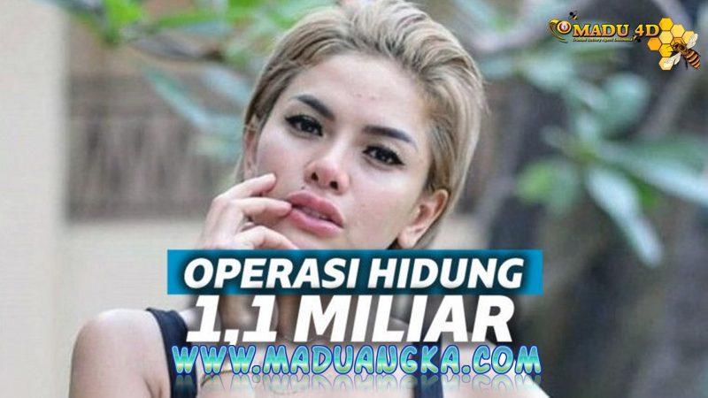 Nikita Mirzani Habiskan Rp 1,1 Miliar Operasi Hidung